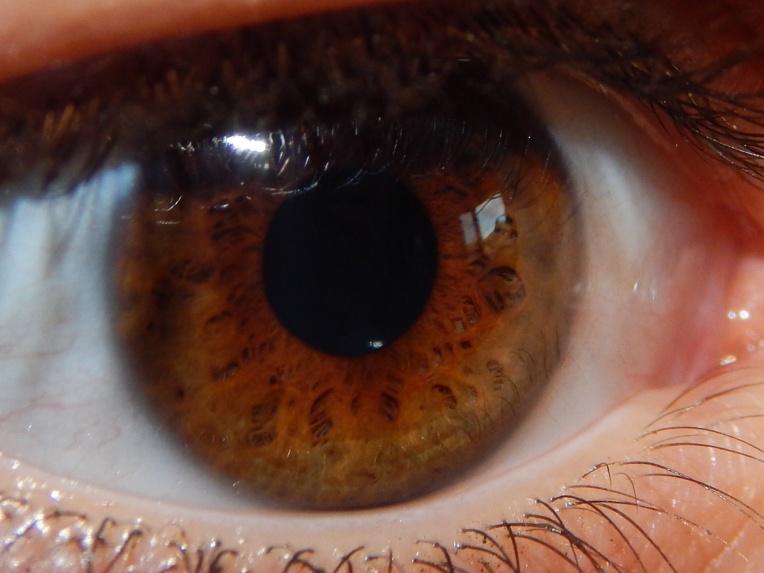 2014-9-1-Allison(Eyes) 022
